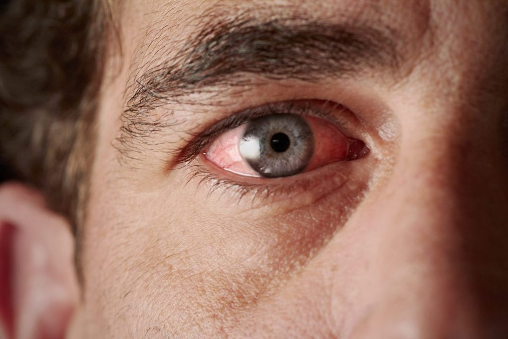 What to do when your eyes are irritated