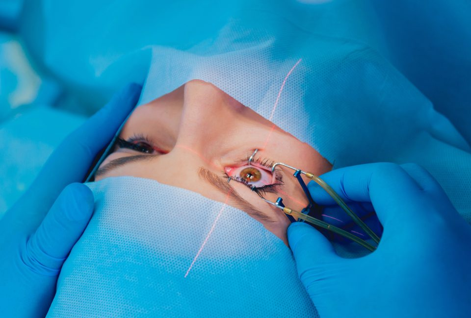 Closeup of speculum being used before LASIK eye surgery