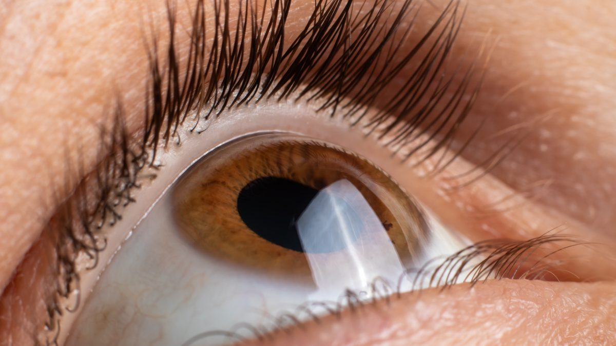 Keratoconus of eye, 4th degree. Contortion of the cornea in the form of a cone, deterioration of vision, astigmatism.